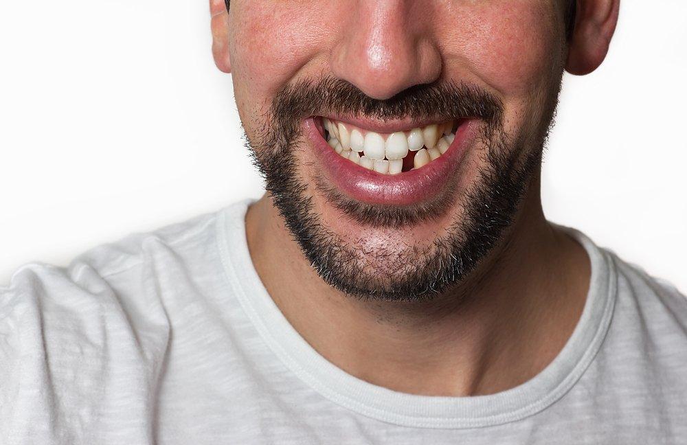 Dreams About Losing Teeth